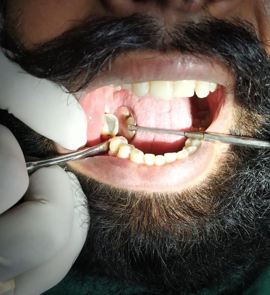 best dental implant in punjab